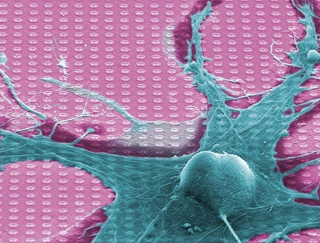 "The ""Neuro-Chip"" from Infineon Technologies is connected with a living nerve cell. The Neuro-Chip's 16,384 sensors read the electrical activity of the cell. The typical size of neurons is between 10 - 50 micrometers (1 µm, a thousandth of a millimeter).    Press Photo: Infineon Technologies, Max Planck  Institute"